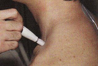 リンパスポット療法による頸部の治療1